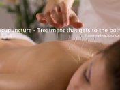 AcupunctureSW1